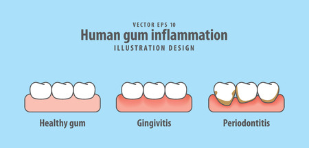 Human gum inflammation illustration vector on blue background. Dental concept.