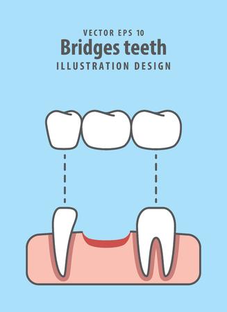 Bridges teeth illustration vector on blue background. Stock Illustratie