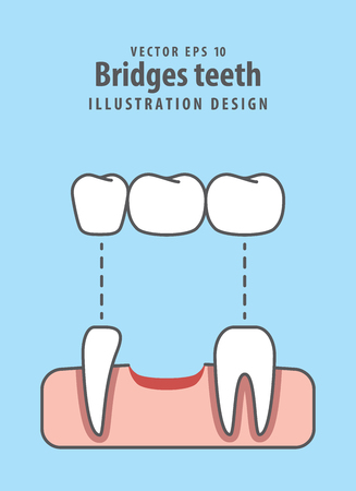 Bridges teeth illustration vector on blue background. Vectores