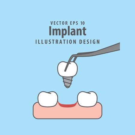 Implanteer illustratievector op blauwe achtergrond.