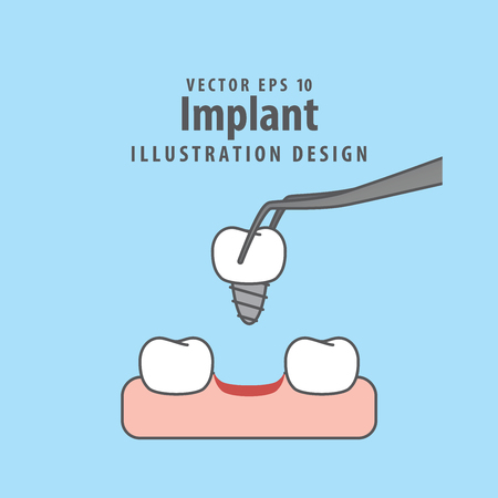 Implant illustration vector on blue background. Illustration