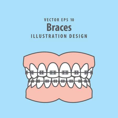 Braces teeth illustration vector on blue background. Dental concept. Illustration