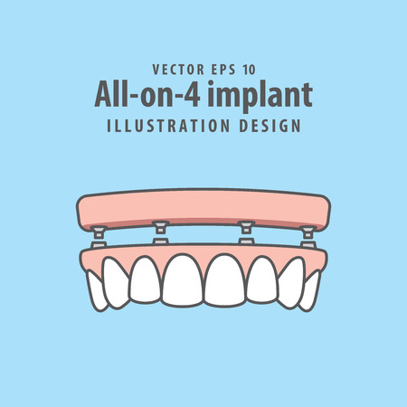 All-on-4 implant illustration vector on blue background. Dental concept.