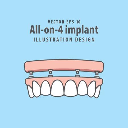 All-op-4 implantaatillustratievector op blauwe achtergrond. Tandheelkundige concept.