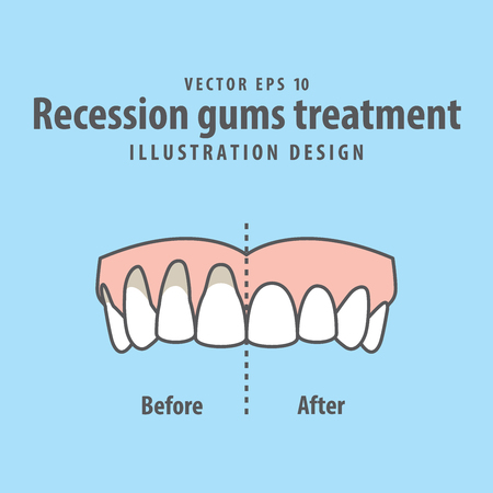 青い背景のイラストベクトルの前後に上歯の不況歯茎処理を比較します。歯科の概念。  イラスト・ベクター素材