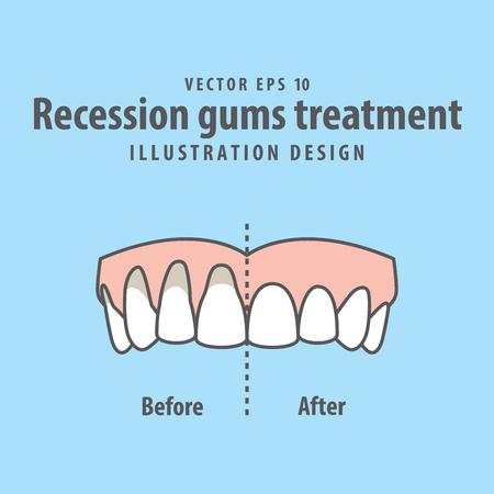 Vergelijk bovenste tanden Recessie tandvlees behandeling voor en na illustratie vector op blauwe achtergrond. Tandheelkundige concept. Stock Illustratie