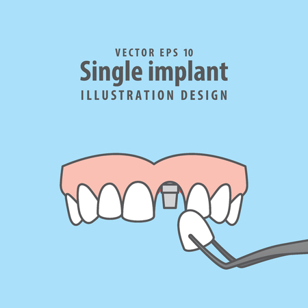 Single implant upper illustration vector on blue background. Dental concept.
