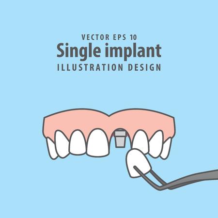 Single implant upper illustration vector on blue background. Dental concept.