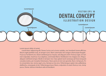 Layout decay tooth check up (Cavity) cartoon style for info or book illustration vector. Dental concept.
