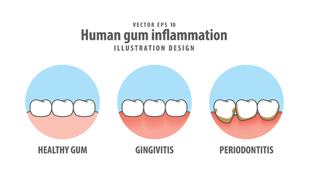 Human gum inflammation in circle illustration vector on white background. Dental concept.