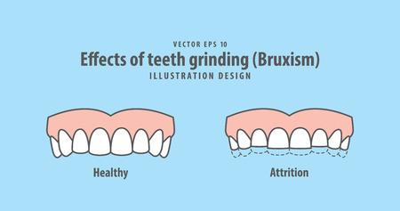 Effecten van tanden slijpen (bruxisme) illustratie vector op blauwe achtergrond. Tandheelkundige concept.