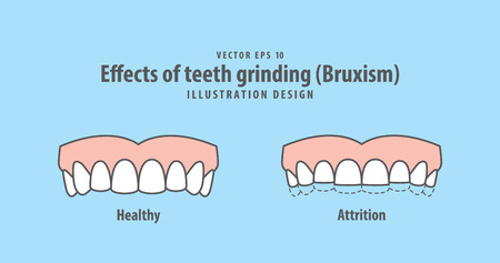 Effects of teeth grinding (Bruxism) illustration vector on blue background. Dental concept.