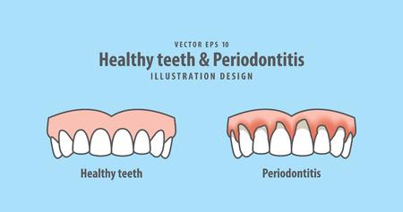 Upper healthy teeth Illustration