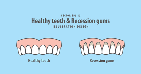Upper healthy teeth Stock Illustratie