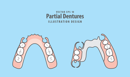 Partial Dentures illustration vector on blue background. Dental concept. Standard-Bild - 94623864
