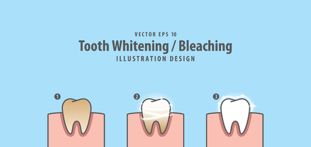 Step of single tooth Whitening-Bleaching and human gum illustration vector on blue background. Dental concept.