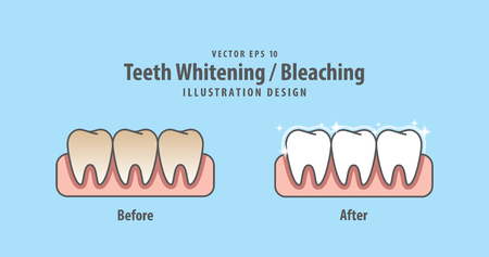 Compare teeth Whitening-Bleaching before and after illustration vector on blue background. Dental concept.