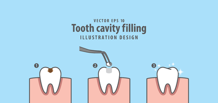 Step of tooth cavity filling illustration vector on blue background. Vettoriali
