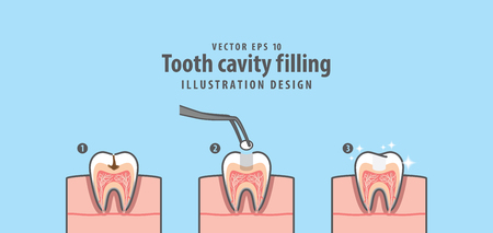Step of tooth cavity filling cross-section structure inside tooth illustration vector on blue background.