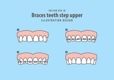 Braces teeth step upper illustration vector on blue background. Dental concept.