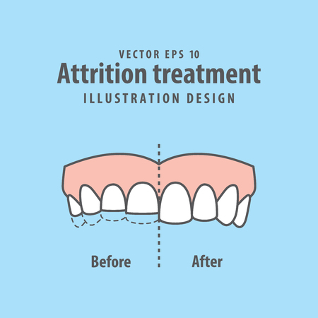 Attrition treatment comparison illustration vector on blue background. Dental concept. Stock Illustratie