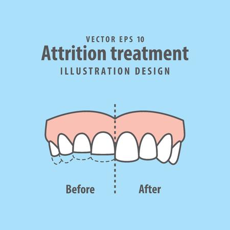 Attrition treatment comparison illustration vector on blue background. Dental concept. Vettoriali