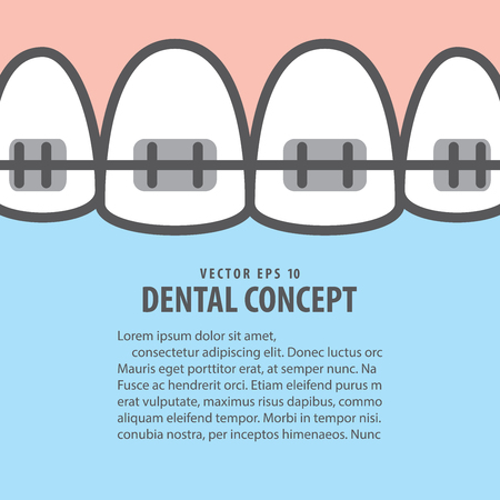 Layout closeup braces upper teeth illustration vector on blue background. Dental concept.