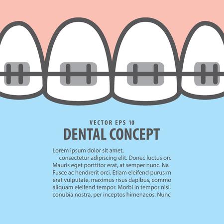 Layout closeup braces upper teeth illustration vector on blue background. Dental concept.