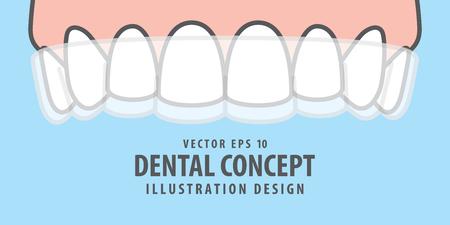 Banner Upper Essix retainer illustration vector on blue background. Dental concept.  イラスト・ベクター素材