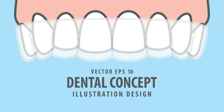 Banner Upper Essix retainer illustration vector on blue background. Dental concept. Vettoriali