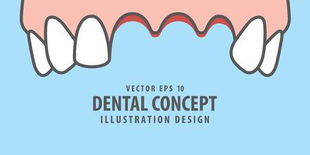 Banner Upper Lost teeth illustration vector on blue background. Dental concept. Vettoriali