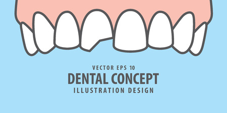 Banner Upper Chipped tooth illustration vector on blue background. Dental concept.