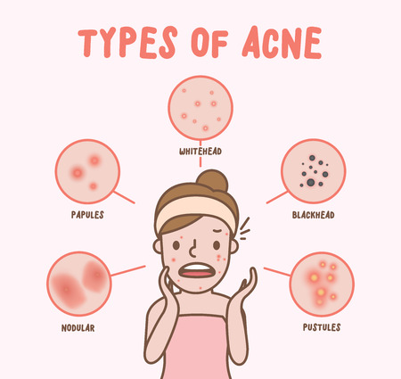 Types of acne with woman cartoon illustration vector on pink background. Beauty concept.  イラスト・ベクター素材
