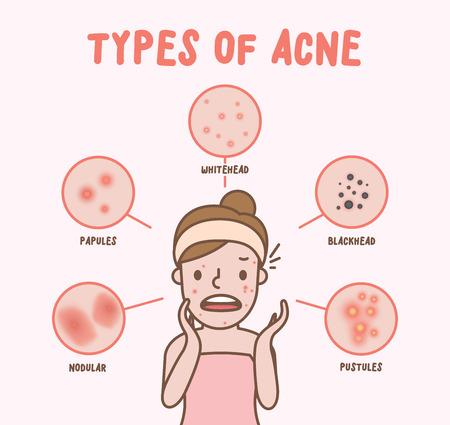 Arten von Akne mit Frauenkarikaturillustrationsvektor auf rosa Hintergrund. Schönheitskonzept.