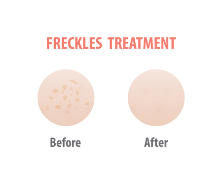 Freckles treatment comparison illustration vector on white background. Skin concept.