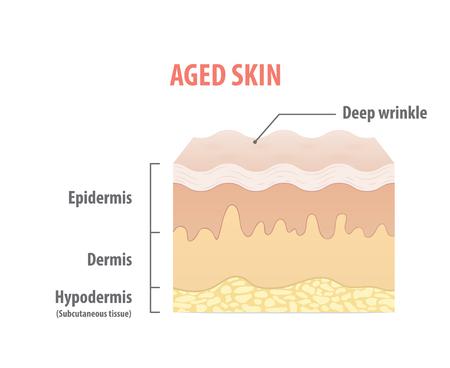 Aged skin diagram illustration vector on white background. Medical concept.