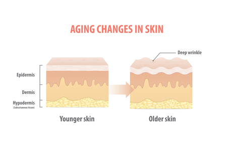 Aging changes in skin illustration vector on white background. Beauty concept.