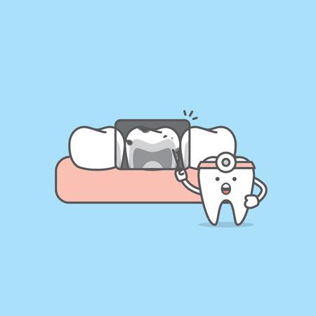 Raggi X con il vettore dell'illustrazione dei caratteri del dente (cattive condizioni) su priorità bassa blu. concetto dentale.