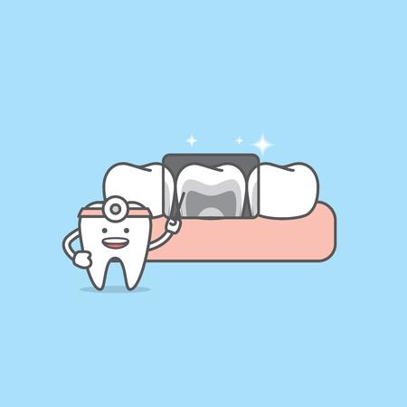 Röntgen mit Illustrationsvektor der Zahnzeichen (guter Zustand) auf blauem Hintergrund. Zahnärztliches Konzept. Vektorgrafik