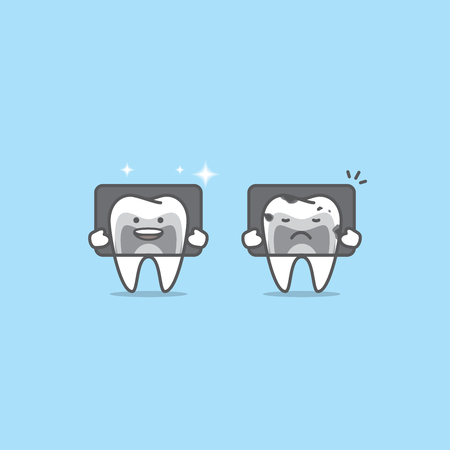 X-ray with Tooth characters compare good & bad condition illustration vector on blue background. Dental concept.