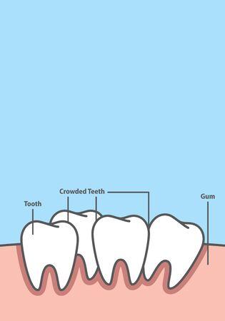 Blank banner Crowding tooth frame cartoon style for info or book illustration vector on blue background. Dental concept. Ilustração