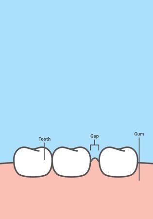 Blank banner Diastema teeth frame cartoon style for info or book illustration vector on blue background. Dental concept. Ilustração