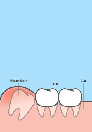 Sabiduría de banner en blanco Diente impactado dentro bajo vector de ilustración de encía de inflamación sobre fondo azul. Concepto dental. Ilustración de vector