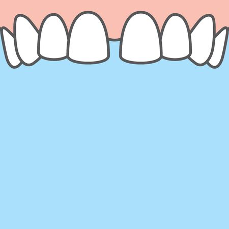 Blank banner Upper Diastema teeth illustration vector on blue background. Dental concept. Illusztráció