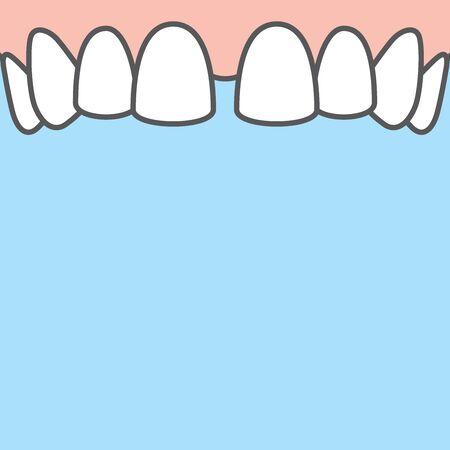 Blank banner Upper Diastema teeth illustration vector on blue background. Dental concept. Illustration