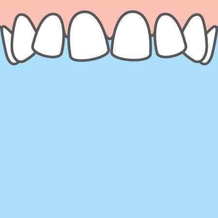 Blank banner Upper askew teeth illustration vector on blue background. Dental concept.