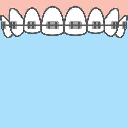 Blank banner Upper Braces teeth illustration vector on blue background. Dental concept. Ilustração