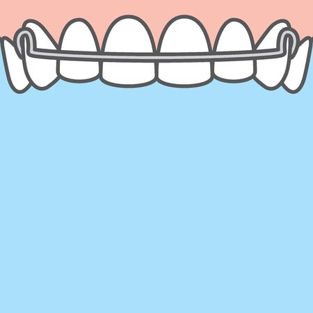 Blank banner Upper Hawley retainer illustration vector on blue background. Dental concept.