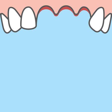 Blank banner Upper Lost teeth illustration vector on blue background. Dental concept.