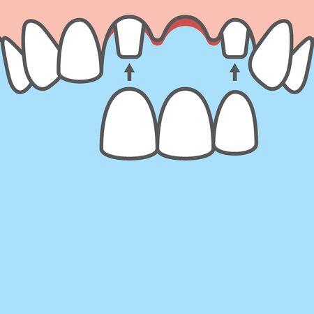 Bannière vierge Ponts dents supérieures (racine d'origine) illustration vectorielle sur fond bleu. Notion dentaire. Vecteurs